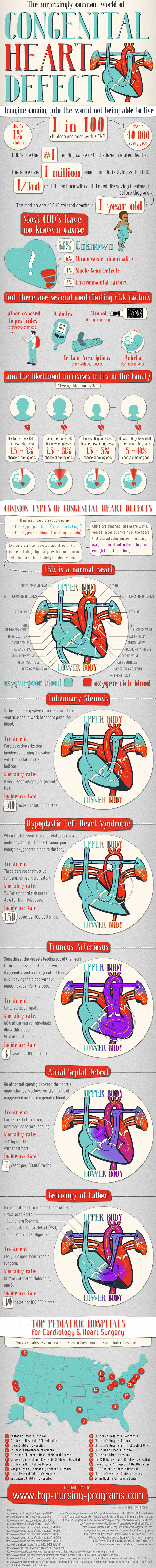 congenital-heart-defect